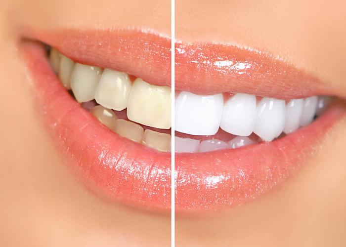 Why Teeth Whitening Is the Most Popular Cosmetic Service